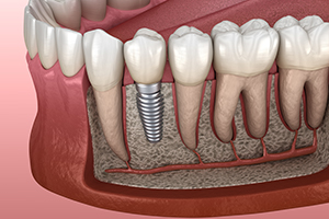 Animation of dental implant placement after bone graft