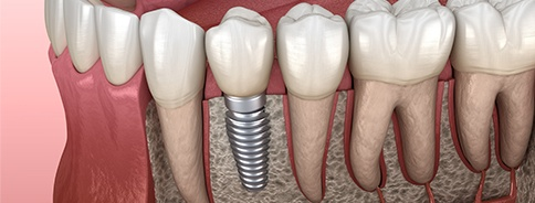 Animation of implant supported replacement tooth
